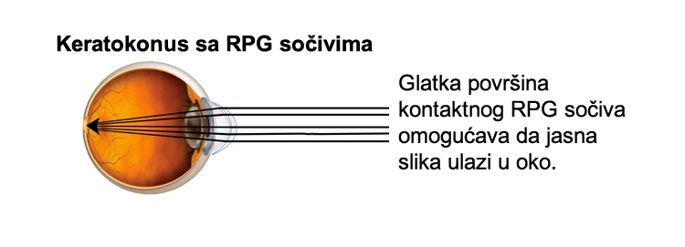 rpg-socivo